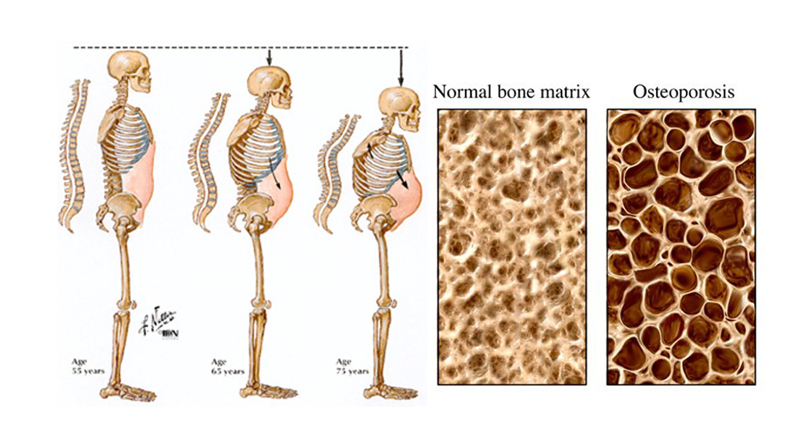 راه های درمان خانگی پوکی استخوان
