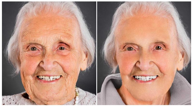 جوانسازی پوست در سالمندان